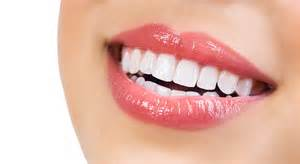 zoom teeth whitening picture 3