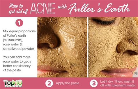 how to clear up acne over night picture 4