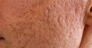 ice for acne inflammation picture 5