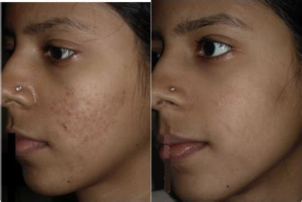 doxycycline acne picture 6