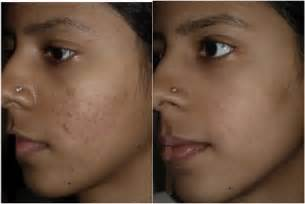 needling for acne scarring picture 6