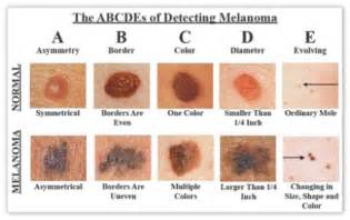 pictures of different types of skin cancers picture 7