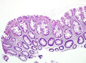 pictures of colon polyps picture 1