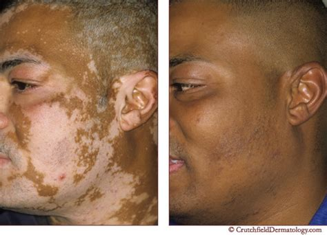 the acne cure picture 6
