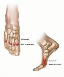 capsulitis fifth toe joint symptoms picture 6