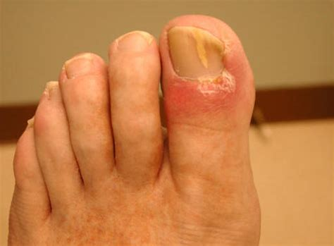 fungus on the toe nails picture 7
