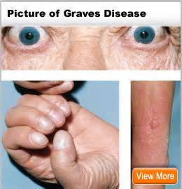 british thyroid foundation and graves disease symptoms picture 3