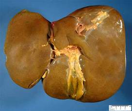carcinoma pancreas colon liver picture 15