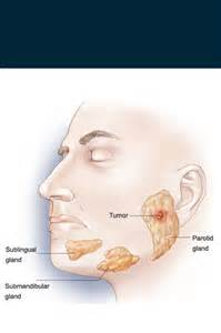 sore lymph node on jawline thyroid nodule picture 2