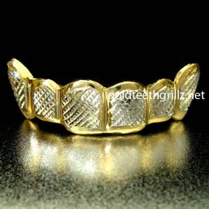 diamond cut gold teeth picture 7