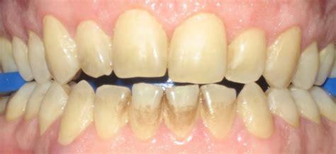 calcium teeth white picture 14