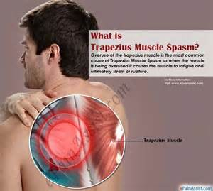 Causes of muscle spasms picture 9