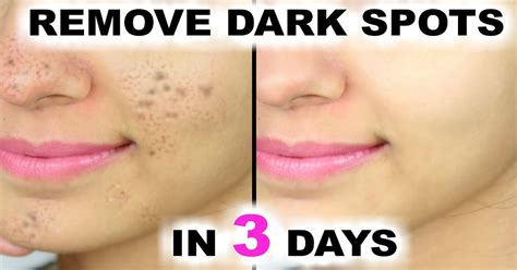 how to treat dark acne marks picture 7