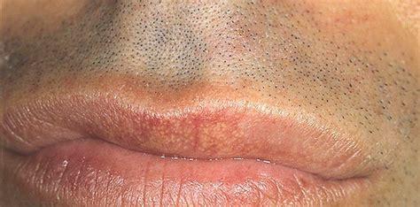 Sebaceous glands lips picture 7