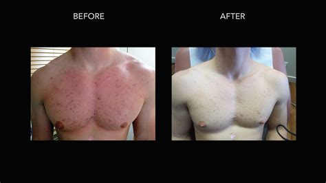 chest hair removal picture 6