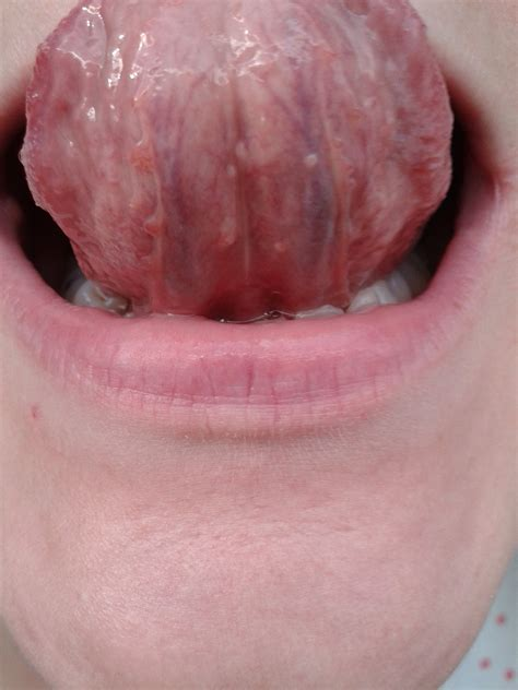 pictures of gential warts on mouth picture 9