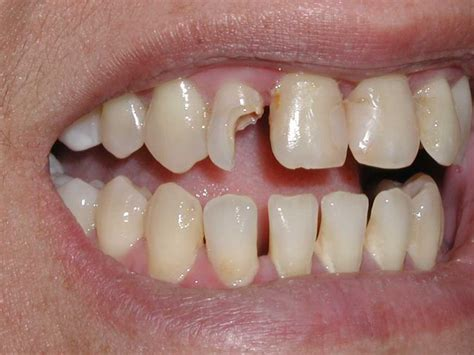 decayed teeth picture 6