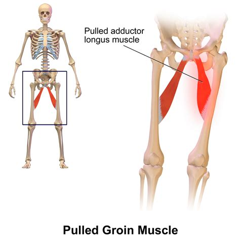 info on pull muscle picture 5