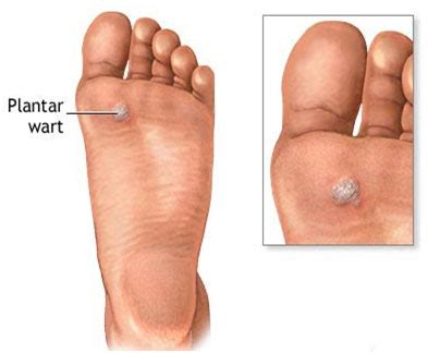 types of warts guide causes,symptoms picture 18
