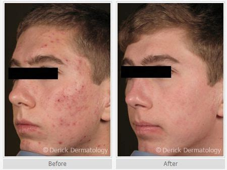 acne cyst preparation h picture 13
