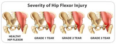 hip flexor muscle pull picture 11
