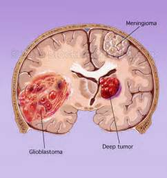 cholesterol cyst brain picture 9