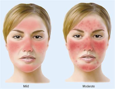 acne rosecea picture 1
