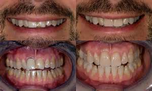 can dentist remove cement off of teeth picture 14