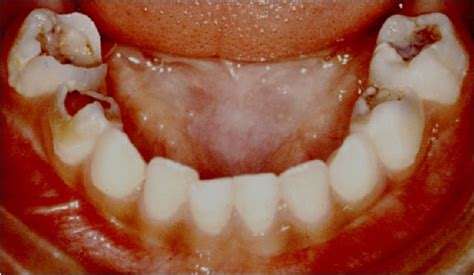 decaying teeth pictures picture 3