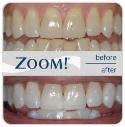 kansas zoom teeth whitening picture 5