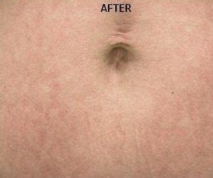 cosmetic surgery stretch mark removal picture 18
