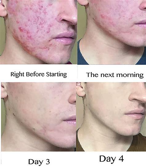 recent acne prescriptions picture 5