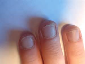 will zeta clear burn off old nails picture 15