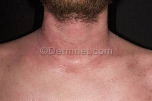 holistic dermatology in oc treat herpes picture 7