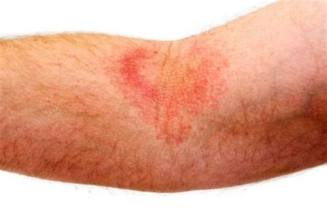 what to do first chafing in skin folds picture 8
