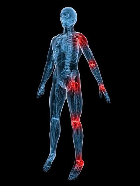 causes of body joint pain inflammation picture 12