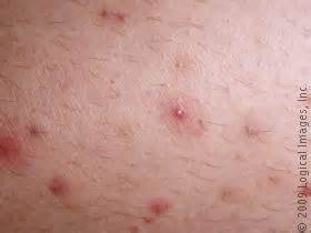chafed swelling skin picture 11