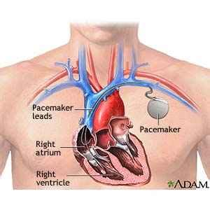 weight gain after pacemaker implant picture 7