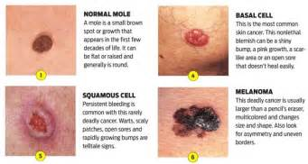 pictures of different types of skin cancers picture 3