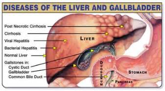 gallbladder liver flush picture 5