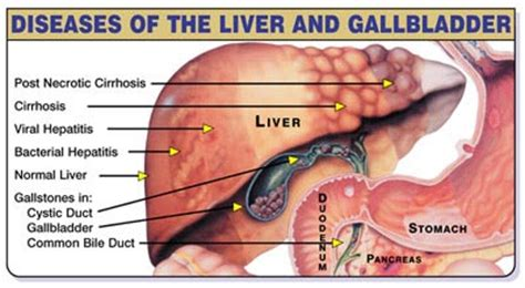 gall bladder infection picture 13