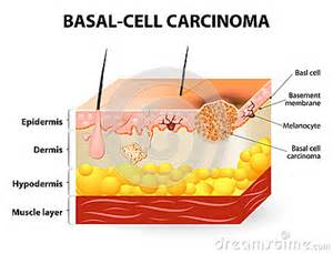 basal cell skin c picture 1