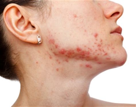 acutane for acne picture 13
