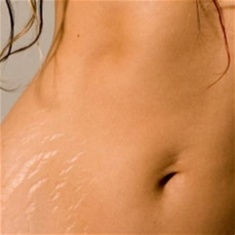 can stretch mark go away picture 7