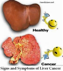 liver cancer signs symptoms picture 10