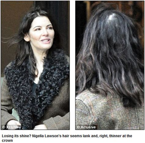 weight loss hair loss picture 14