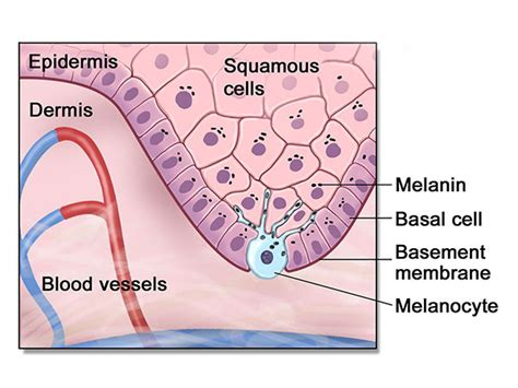 treating advanced cases of basal cell skin cancer picture 11