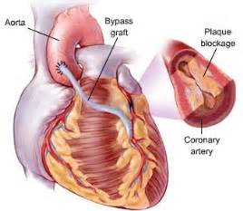Cholesterol causes of picture 6