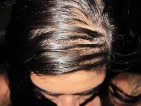 causes of oily hair picture 15