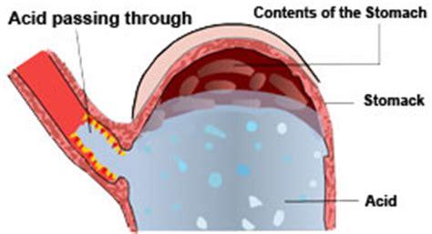 gamot sa gastric acid picture 9